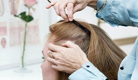 tyndt hår